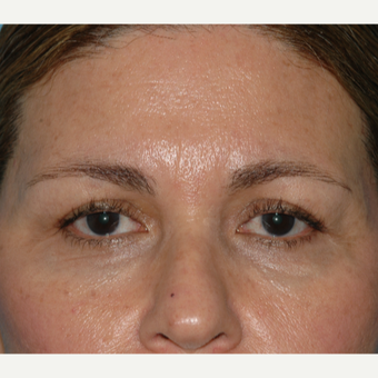 55-64 year old woman treated with Injectable Fillers around the brows and tear troughs before 3060596