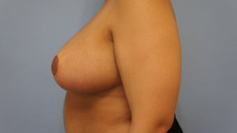 23 Year Old Female Breast Reduction and Nipple Graft Patient 1208873