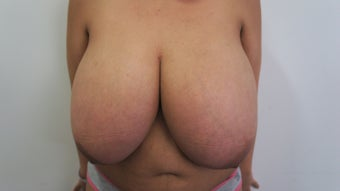 23 Year Old Female Breast Reduction and Nipple Graft Patient before 1208873