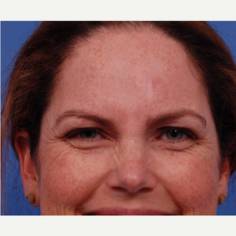 35-44 year old woman treated with Botox before 3168860