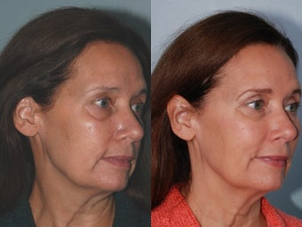 Voluma Filler Treatment to upper cheeks before 1316461