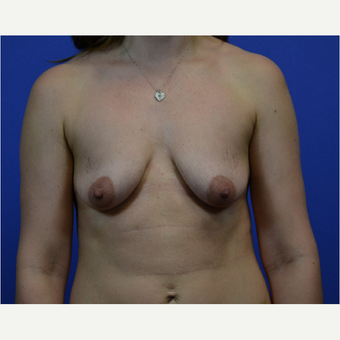 35-44 year old woman treated with Breast Lift with Implants before 3580016