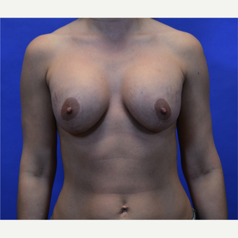 35-44 year old woman treated with Breast Lift with Implants after 3580016
