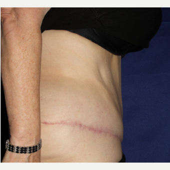 64 Year Old Woman - Lipoabdominoplasty after 3583124