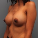 26 year old woman had Breast Augmentation with Silicone Implants after 3544162