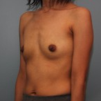 26 year old woman had Breast Augmentation with Silicone Implants before 3544162