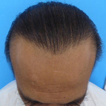 45-54 year old man treated with Hair Transplant after 3295454