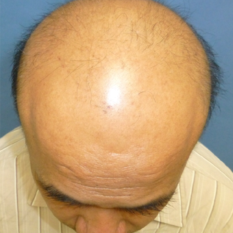 45-54 year old man treated with Hair Transplant before 3295454