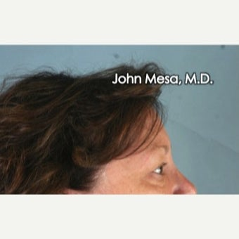 45-54 year old woman treated with Eye Bags Treatment before 2480885