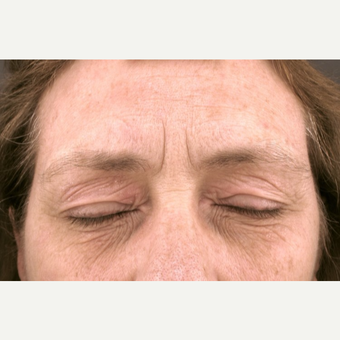 55-64 year old woman treated with fractional CO2 Laser before 2997787