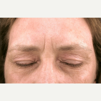 55-64 year old woman treated with fractional CO2 Laser after 2997787