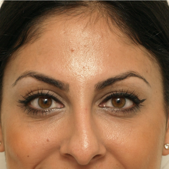 25-34 year old woman treated with Restylane after 3566432