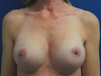 53 Year Old Female Who Had Bilateral Submuscular Breast Lift with Implants after 1390187