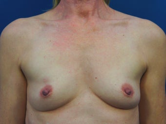 53 Year Old Female Who Had Bilateral Submuscular Breast Lift with Implants before 1390187