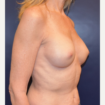55-64 year old woman treated with Breast Implants after 3304928