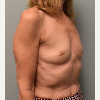 55-64 year old woman treated with Breast Implants before 3304928