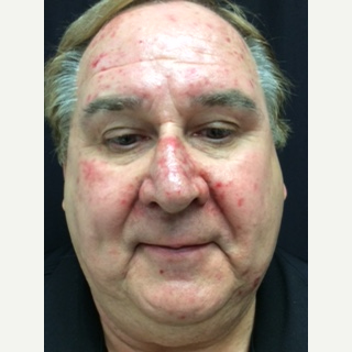 65-74 year old man treated with Photofacial before 2918704