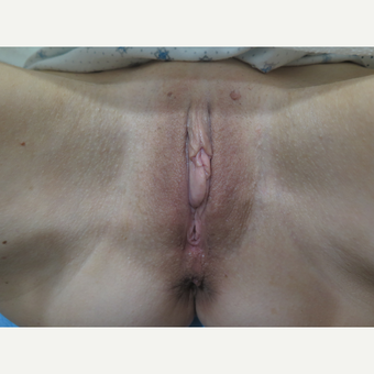 45-54 year old woman treated with ThermiVa after 2923665