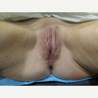 45-54 year old woman treated with ThermiVa before 2923665