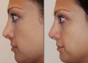 Non-Surgical Nose Job before 99386