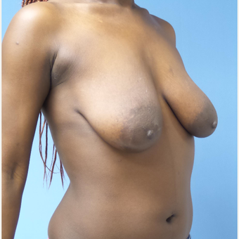 25-34 year old woman treated with Breast Lift with Implants before 3180259
