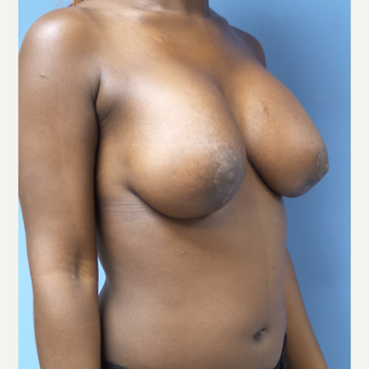 25-34 year old woman treated with Breast Lift with Implants after 3180259
