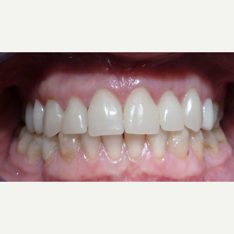 Cerac Dental Crowns placed to replace lost tooth after 3093845