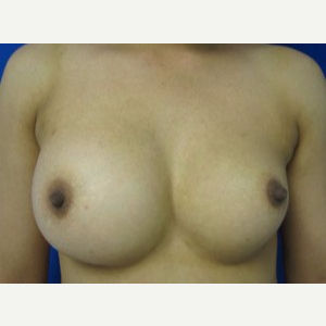 Breast Implant Revision before 3164437