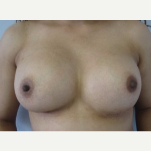 Breast Implant Revision after 3164437
