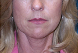 50 Year Old Female Treated with Facelift for Jowls and Sagging Neck before 1081561