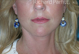 50 Year Old Female Treated with Facelift for Jowls and Sagging Neck after 1081561