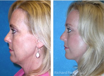 50 Year Old Female Treated with Facelift for Jowls and Sagging Neck 1081561