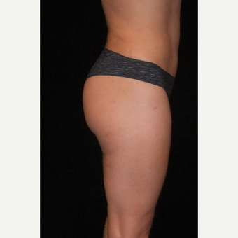 35-44 year old woman treated with Brazilian Butt Lift after 3286751