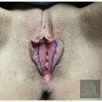 35-44 year old woman treated with Labiaplasty before 3507217