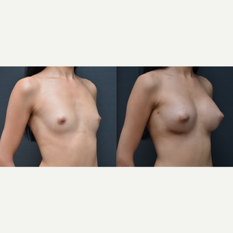 18-24 year old woman treated with Breast Augmentation before 3238740
