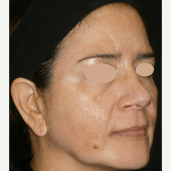 45-54 year old woman treated with Skin Lightening after 3140172