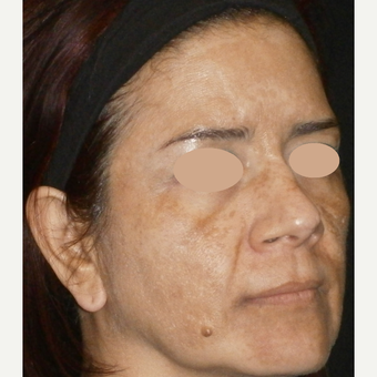 45-54 year old woman treated with Skin Lightening before 3140172