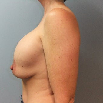 45-54 year old woman treated with Breast Implant Revision before 2141596