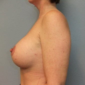 45-54 year old woman treated with Breast Implant Revision after 2141596