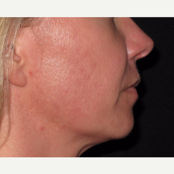 25-34 year old woman treated with Acne Treatment