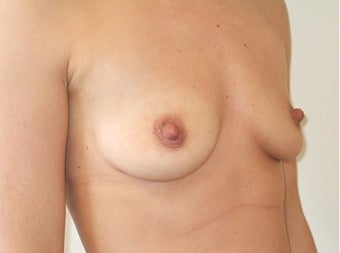 Breast Augmentation Silicone 1197024