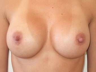 Breast Augmentation Silicone after 1197024