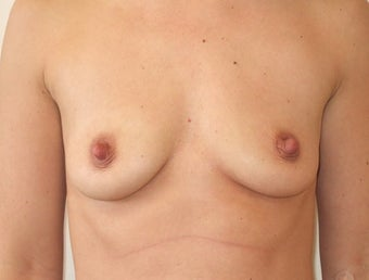 Breast Augmentation Silicone before 1197024
