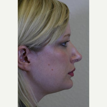 18-24 year old woman treated with Kybella after 2828659