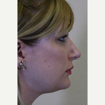 18-24 year old woman treated with Kybella before 2828659