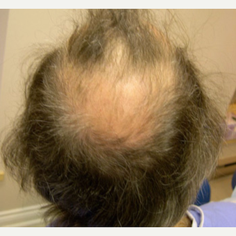 56 year old man treated with FUE Hair Transplant before 3608858