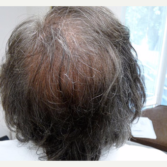 56 year old man treated with FUE Hair Transplant after 3608858
