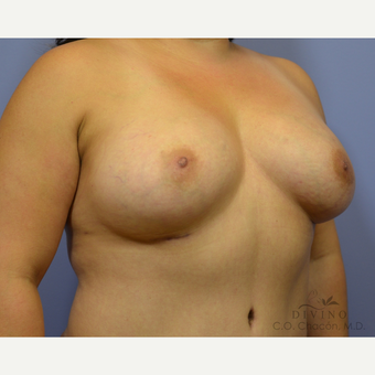35-44 year old woman treated with Breast Augmentation after 3386428