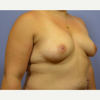 35-44 year old woman treated with Breast Augmentation before 3386428