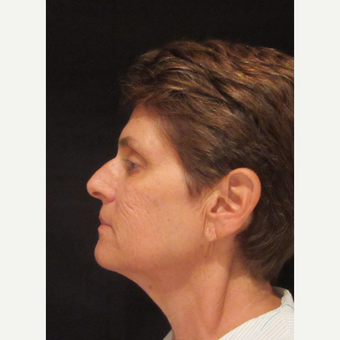 55-64 year old woman treated with Facelift before 3320703